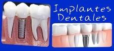 implantes dentales en 350.000 colones (cualquier marca)